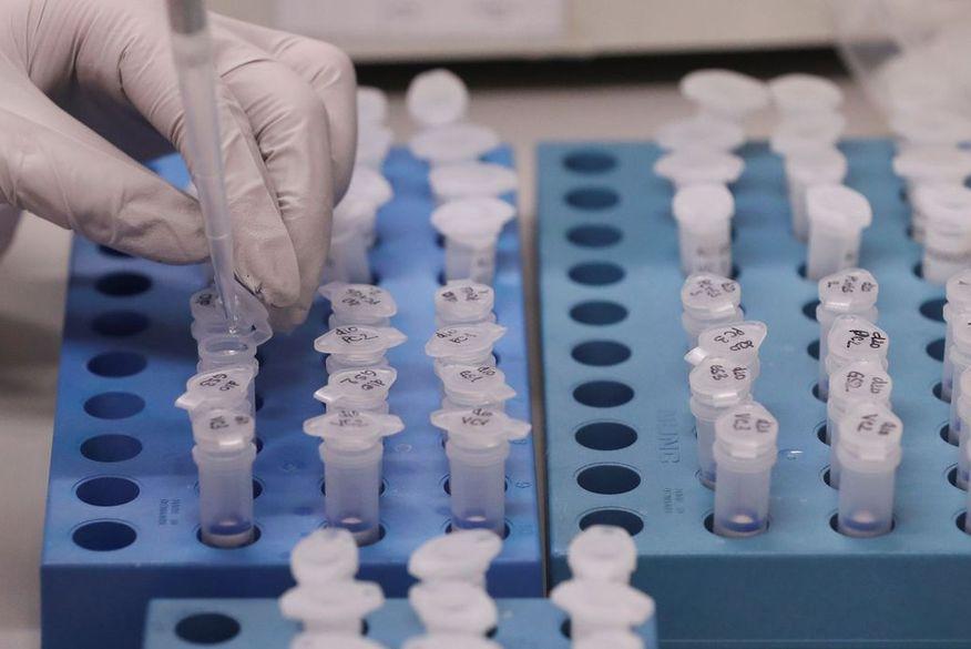 Ministério da Saúde anuncia parceria para desenvolvimento e produção da vacina de Oxford para Covid-19 no Brasil